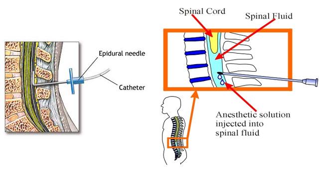 dr_polgar_zoltan_epidural-spinal-2